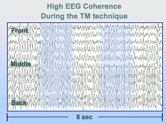 Cohérence EEG